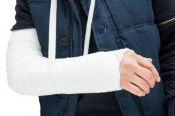 Verkehrsunfall - Dauerschaden nach Ellenbogentrümmer- und Radiusköpfchenfraktur